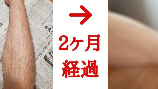 脱毛ラボホームエディション2か月目のbefore/after