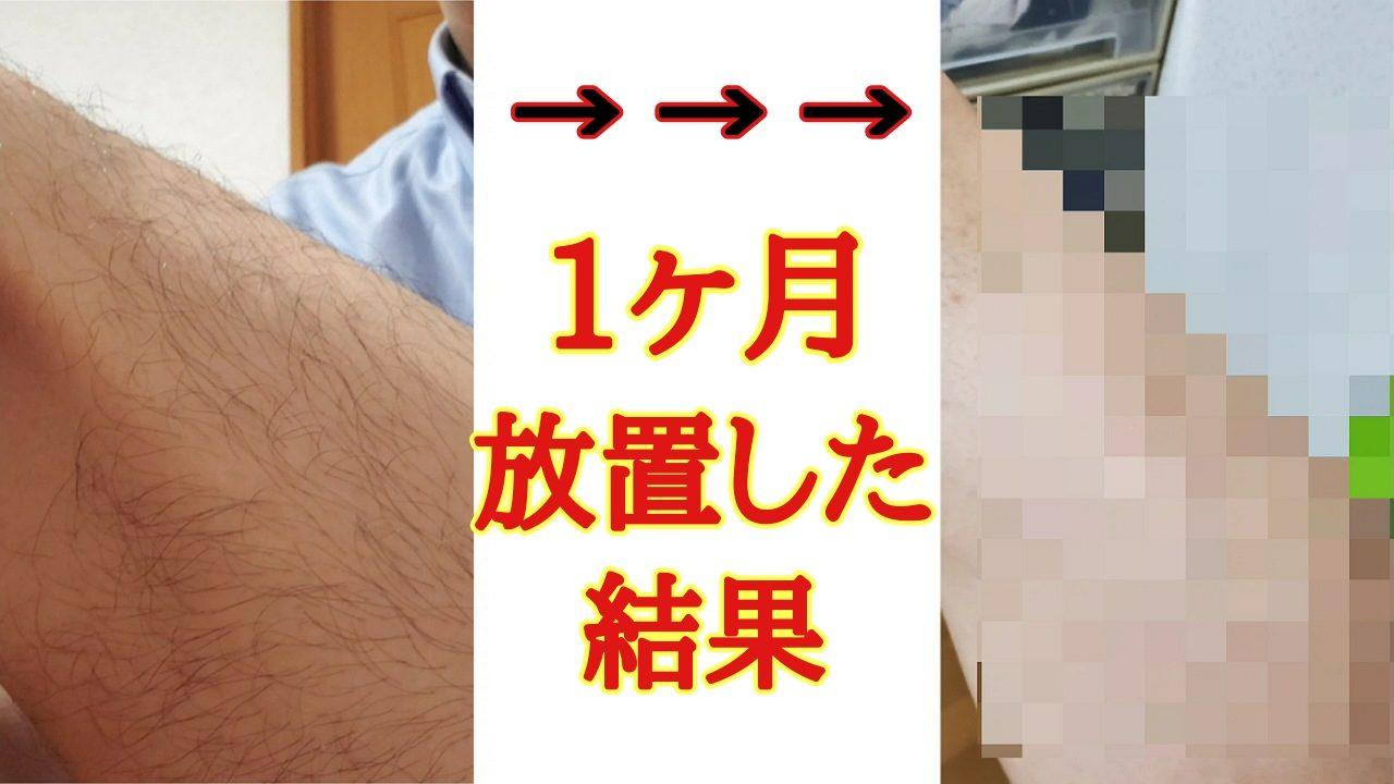 【意外】脱毛ラボホームエディションを2か月使った後に1か月放置した結果