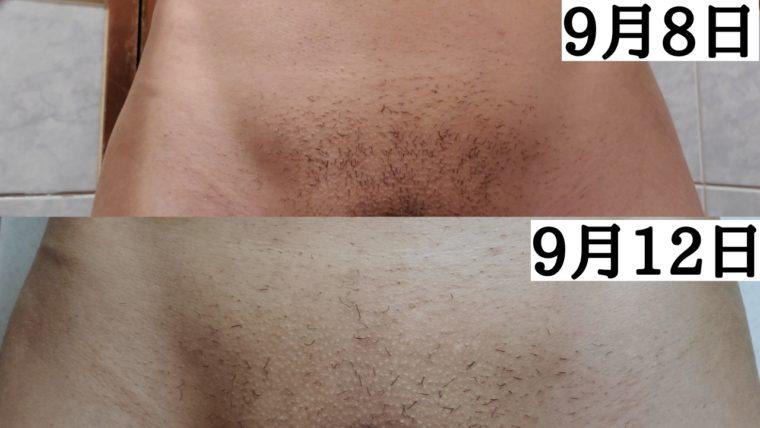 vio脱毛1回目から1~2週間が経過