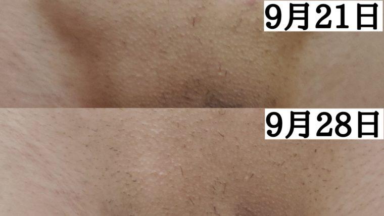 vio脱毛1回目から3~4週間が経過
